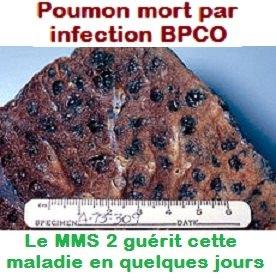 img-BPCO-Centrilobular_emphysema
