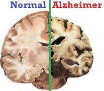 alzheimer-cerveau-mms