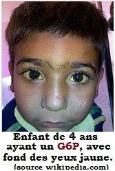 g6p-enfant-oeil-jaune