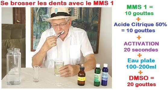 img-abces-dentaire-mms-jim-humble-video2