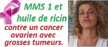 img-cancer-ovaire-mms1-huile-ricin