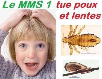 img-mms1-tue-poux-et-lentes