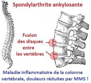 img-spondylarthrite-ankylosante