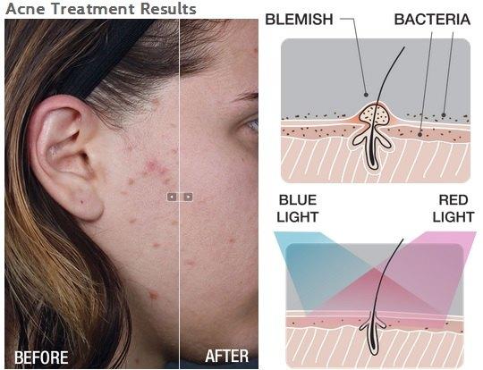 luminotherapie-masque-acne