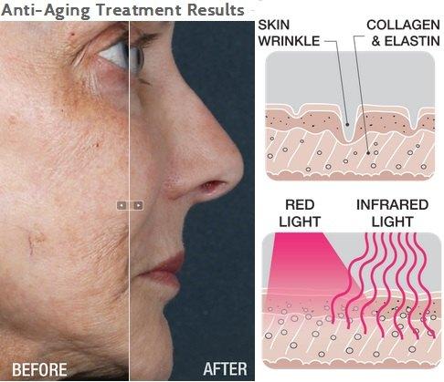 luminotherapie-masque-anti-age