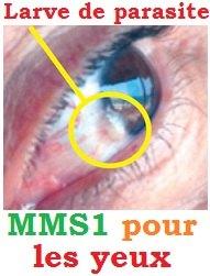 oeil-mms-dans-les-yeux-parasite_larva