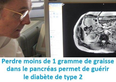 diabète non traité symptomes