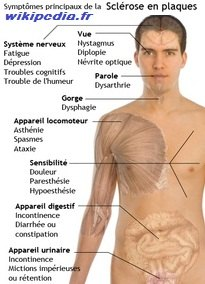 img-SEP-symptomes_sclerose_en_plaques