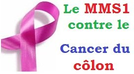 mms1-contre-cancer-du-colon