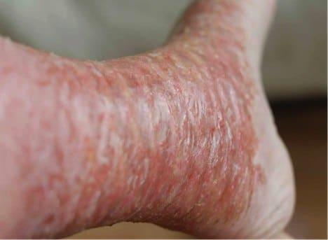 mms-pied-maladie-inconnue-1