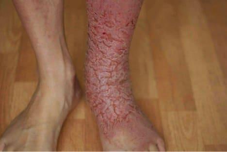 mms-pied-maladie-inconnue-4