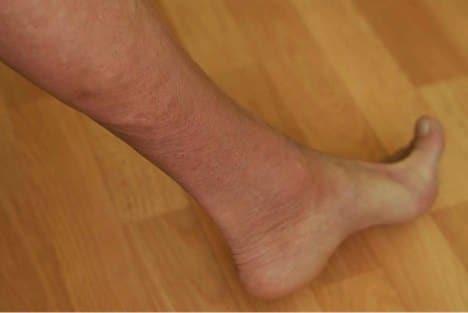 mms-pied-maladie-inconnue-5