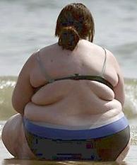 obesite-mms