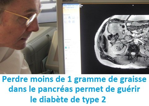 guerir-diabete-type-2-Prof-Taylor